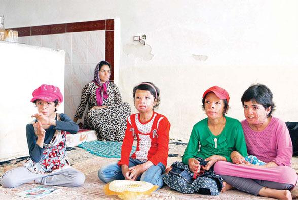 دانش آموزان شین آبادی باید ۲۰ بار عمل شوند