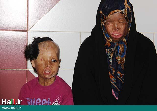 استمداد از عاشقان مولایمان علی ابن ابیطالب (ع) برای کمک به مادر و دختری که قربانی اسیدپاشی هستند
